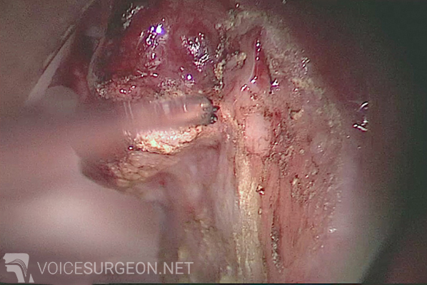 Vocal Cord Cancer Surgery: Before & After