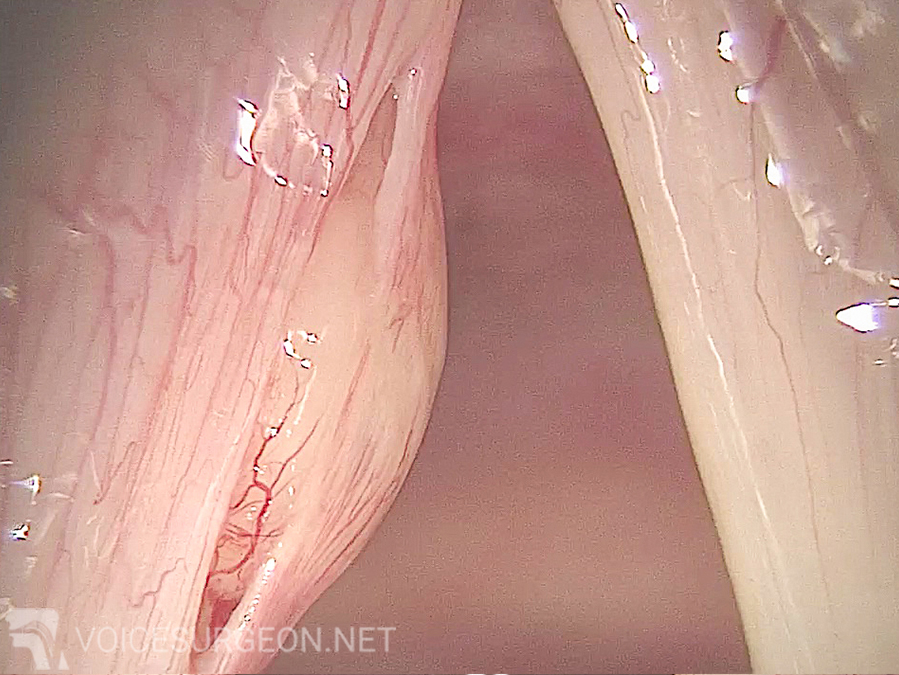 Vocal Cord Cyst Removal Surgery: Before the Vocal Cord Cyst Removal Surgery
