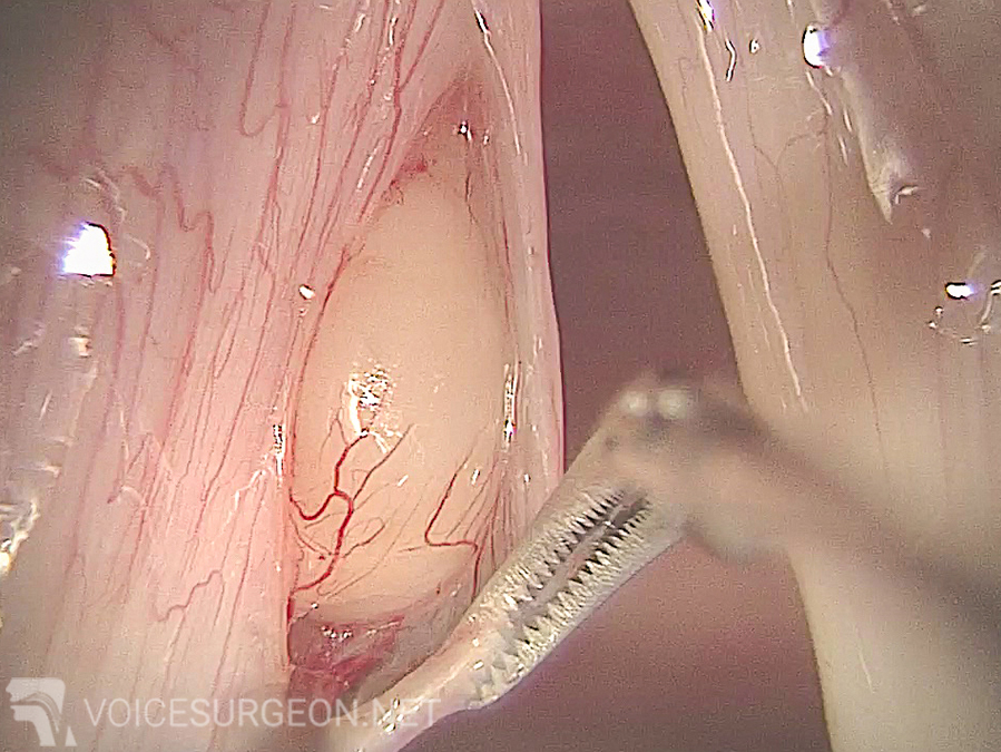 Vocal Cord Cyst Removal Surgery: After the Vocal Cord Cyst Removal Surgery
