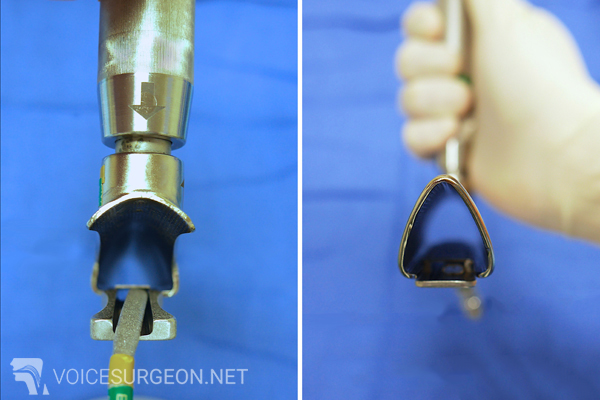 Microlaryngoscopy - Microlaryngoscopy with Biopsy - Voice