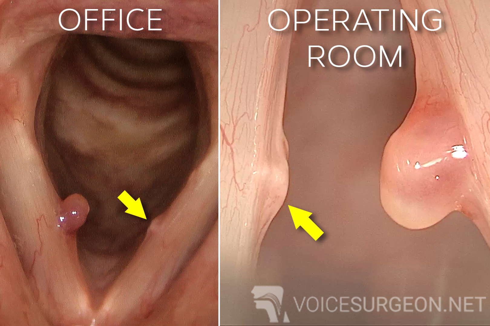 Example of vocal cord polyps