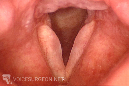 Reinke's Edema - Smokers Polyp of the Vocal Cord Surgery