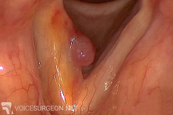 Voice Disorders: Vocal Cord Polyp